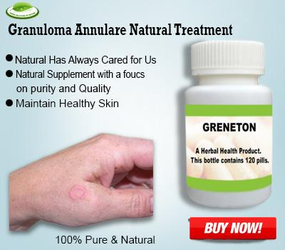Granuloma Annulare Natural Treatment